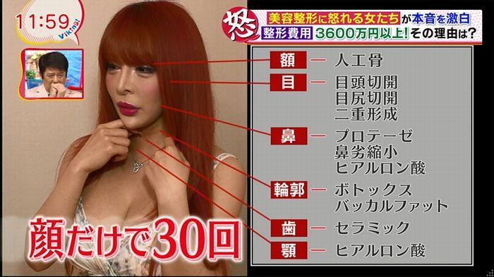 バイキング(美容整形に怒る女達が生出演)のキャプチャ46