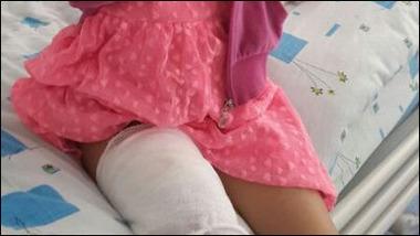 7歳の少女のスマホが爆発