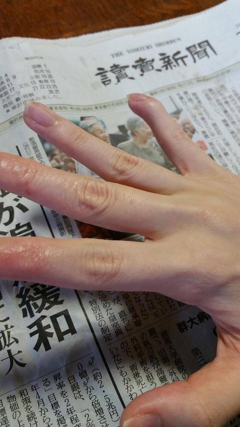 小指変形2