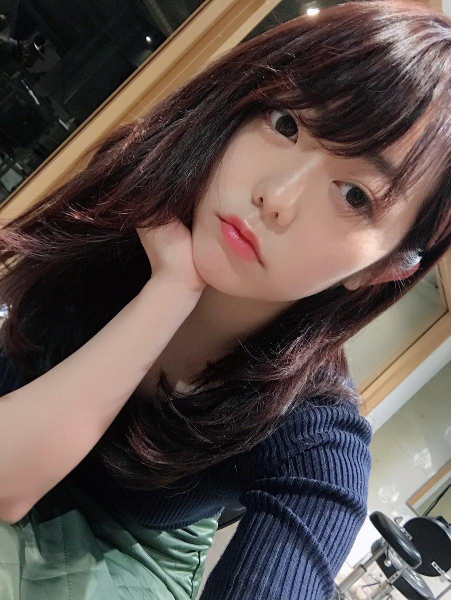 峯岸みなみ(25)整形モンスター化してきた模様♪☆☆【エロ画像】