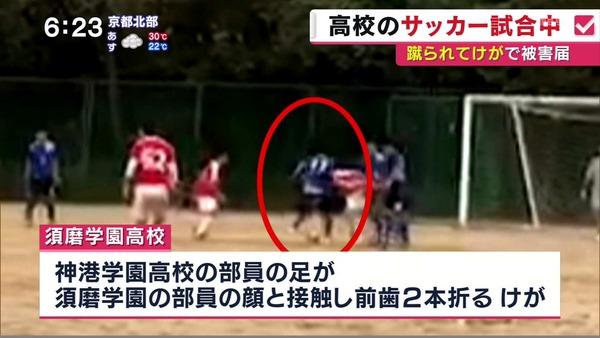 【神戸】須磨学園高が被害届、サッカー試合中に前歯折る重傷=神港学園「故意ではない」