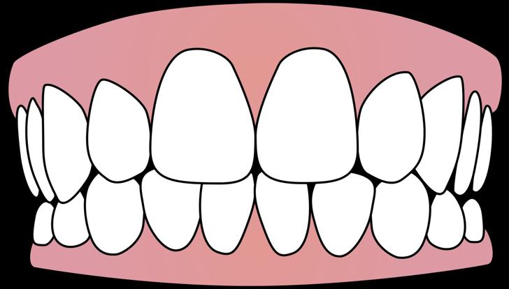 190627歯