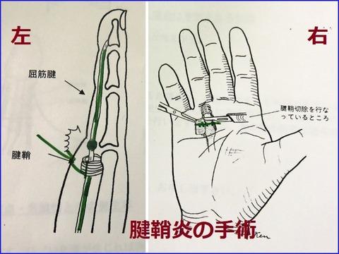11月24日腱鞘炎手術