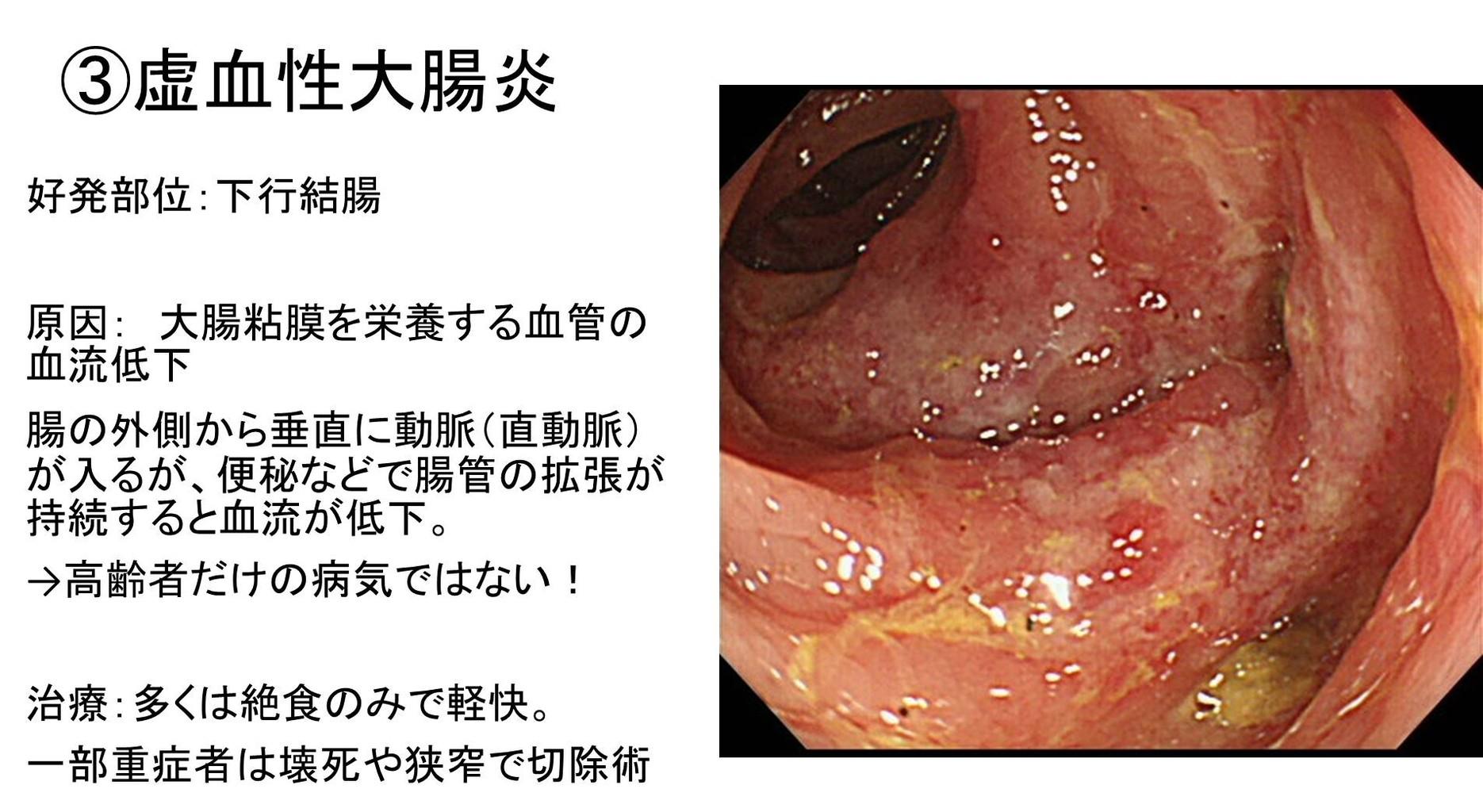 炎 虚 血性 大腸