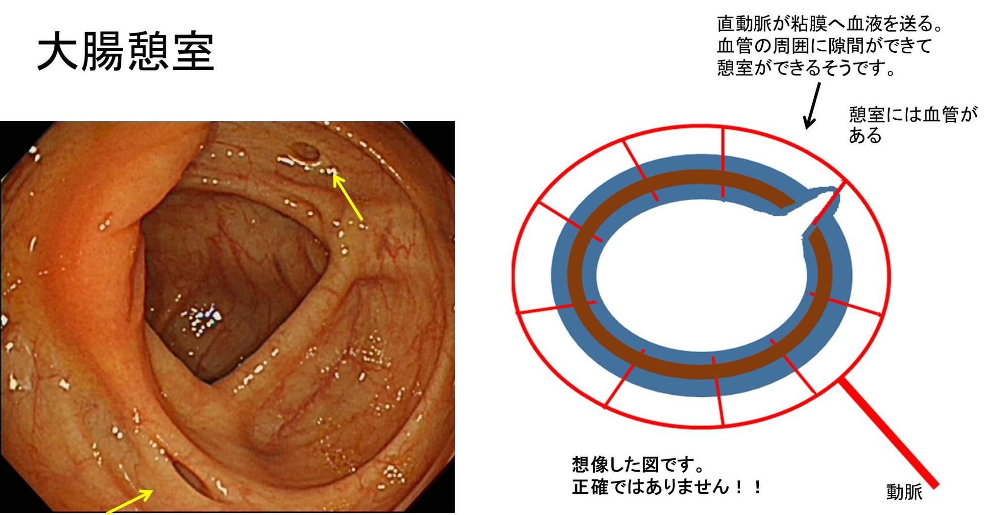 憩室 炎 再発 大腸
