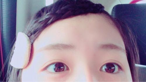 長濱ねる-pic-05