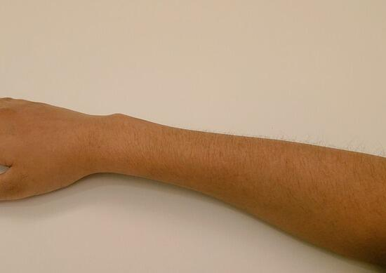 【画像】脱毛処理してない女さんの腕がこちらwww
