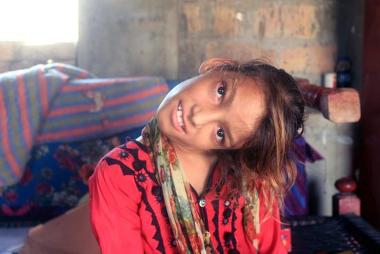 【画像】パキスタンの女の子、首が90度に曲がってしまう・・・これヤバいだろ