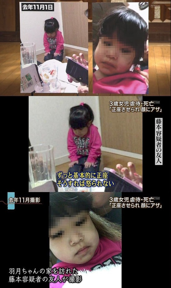 【画像】親に虐待された子、可哀そうすぎる・・・