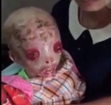 【閲覧注意】遺伝子異常で皮膚剥がれ落ちる病気(魚鱗癬)の少年