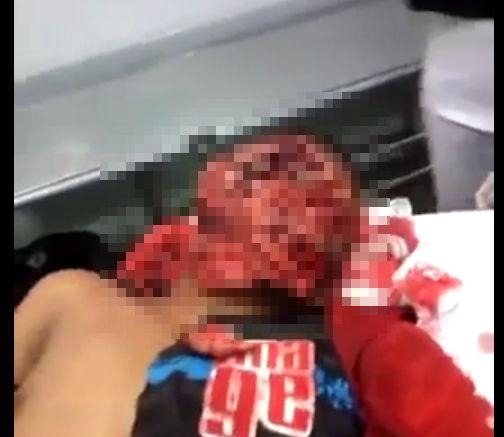【閲覧注意】モブジャスティス、泥棒が捕まり顔を切り刻まれてしまった男性