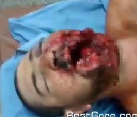 【閲覧注意】ショットガンで顔半分が吹き飛ばされている男性