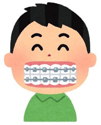 歯の矯正とかいう育ちの良い奴がさせてもらえる高額治療