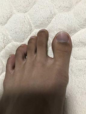 【画像】足が黒いんやが病気じゃないよな...  グッドルーザーズ