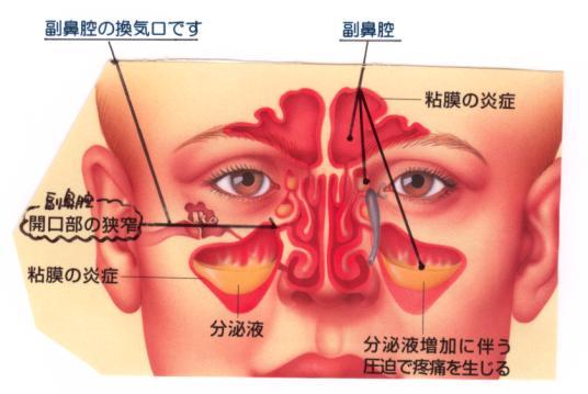 ... 副鼻腔から鼻腔への出口が狭く