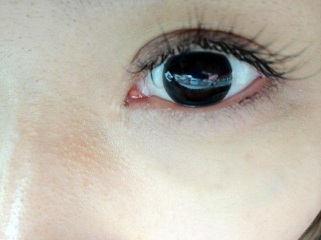目頭 切開 傷跡 目頭切開の傷跡やダウンタイムはどのくらい?気になる術後経過を医師...