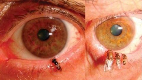 eyebee-thumb-550xauto-90583