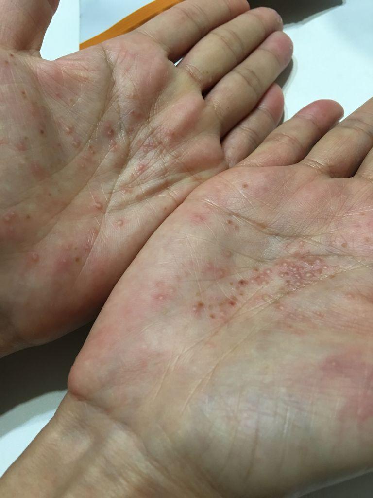 膿疱 症 蹠 掌