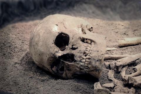 【屍】リアルで人間の死体を見たことある? パート3【その1】