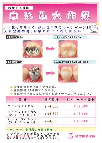 拡大:白い歯大作戦