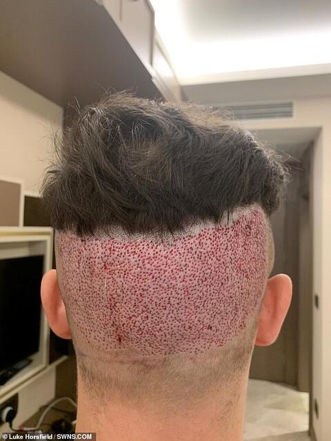 ルーク頭皮 後頭部