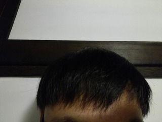 韓国のMOTEN(モテン)で自毛植毛して3年1ヶ月2週間後の経過画像を公開