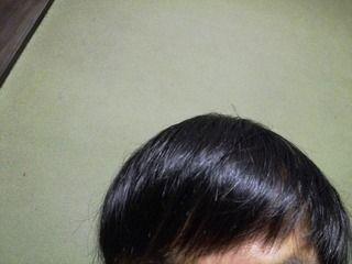 韓国のMOTEN(モテン)で自毛植毛して3年3週間後の経過画像を公開