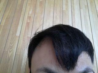 韓国のMOTEN(モテン)で自毛植毛して2年7ヶ月と4週間後の経過写真を公開