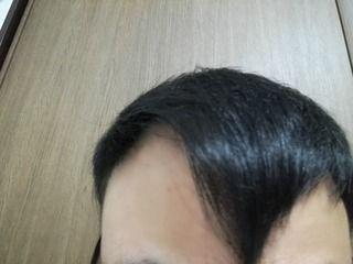 自毛植毛は半永久的に生え続けるものではない。自毛植毛して2年半後の経過画像を公開