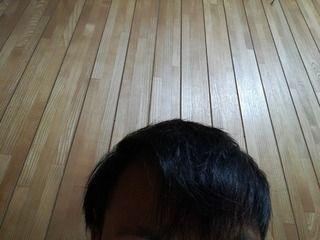 韓国のMOTEN(モテン)で自毛植毛して2年9ヶ月後の経過画像を公開