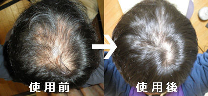 プロペシア(フィンペシア)でハゲを克服しました!発毛効果体験談