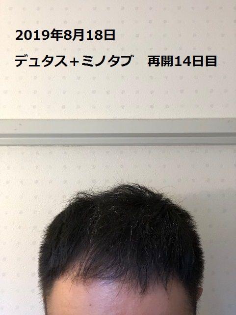 デュタス+ミノタブ使用再開14日目