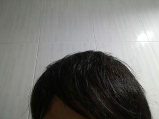 寝ると成長ホルモンが分泌され発毛に効果的。自毛植毛して2年11ヶ月後の経過画像を公開