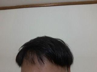 玉ねぎ育毛2ヶ月3週間後の経過写真を公開。玉ねぎで発毛チャレンジ