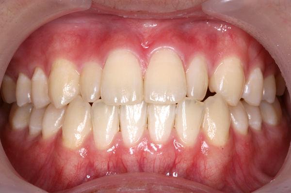 歯医者さんの子育て : 矮小歯