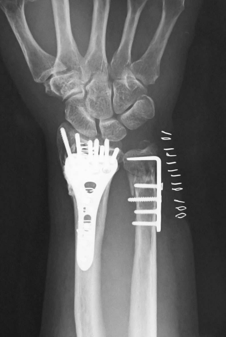 整形外科医のブログ : 尺骨遠位...