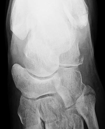 3ヶ所の骨折