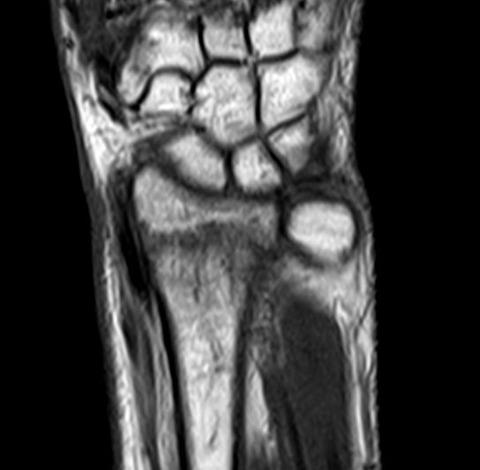 MRI - コピー