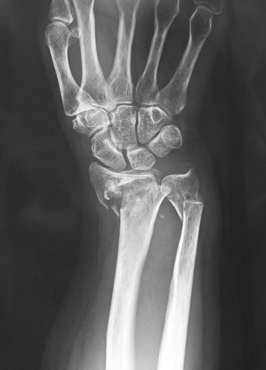橈骨 遠 位 端 骨折 【整形外科】橈骨遠位端骨折を基礎から学ぶ
