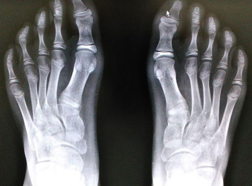 整形外科医のブログ : 足部