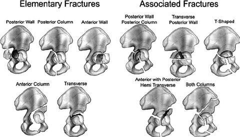 The Judet and Letournel classification for acetabular fractures