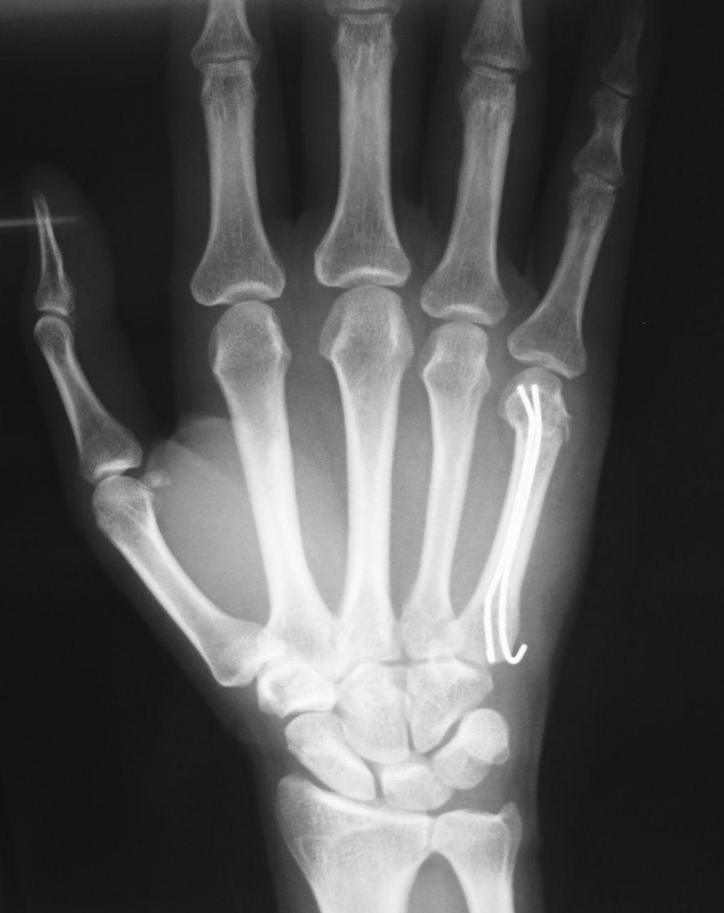 整形外科医のブログ : ボクサー...