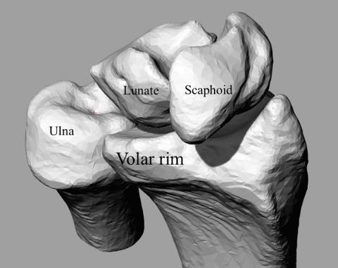 rim fracture - コピー