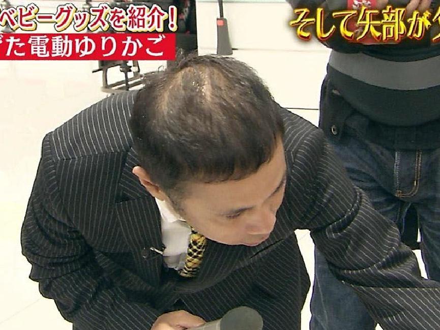 ナインティナイン岡村隆史さんの頭皮のハゲが一段と深刻に・・・Tweet