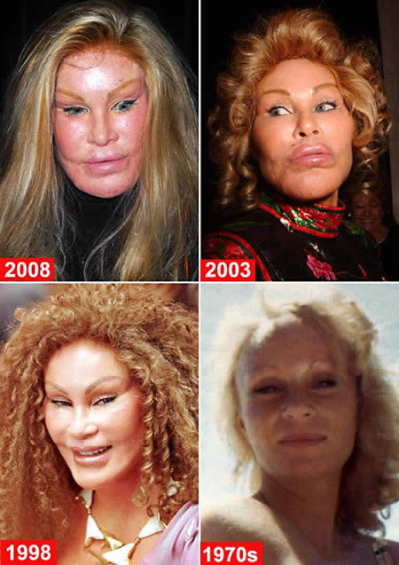 1-jocelyn_wildenstein_beast