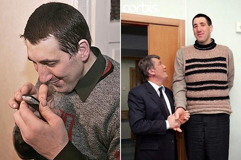Worlds-Biggest-Hand-Palms-Leonid-Ivanovych-Stadnyk