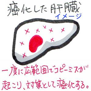 癌化した肝臓イメージ