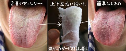 NHKあさイチ! 口臭 原因と対策  正しいケア 解消方法 2