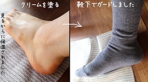 NHKあさイチ カカトガサガサ 解消方法 スキンケア 最新2