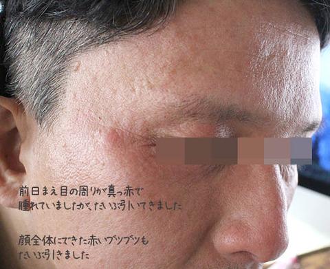乾燥性皮膚炎 顔 治ってきた